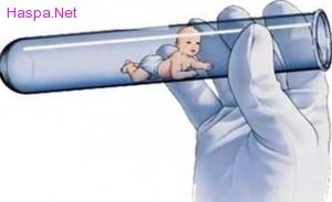 tup-bebek-tedavi